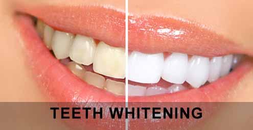 blegning af tænder hos tandlægen
